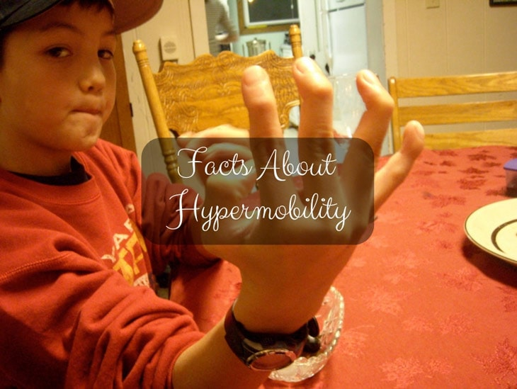 Facts About Hypermobility